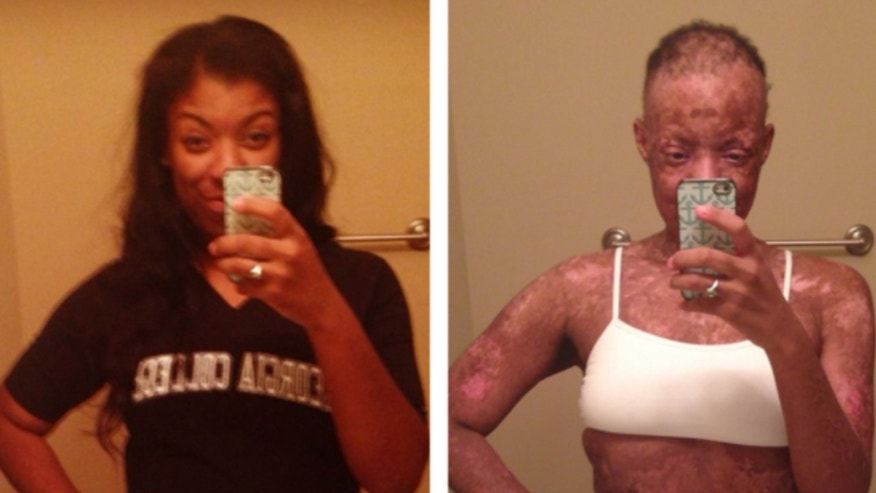 Khalia Shaw was diagnosed with Stevens Johnson Syndrome which caused her skin to painfully blister and peel off.