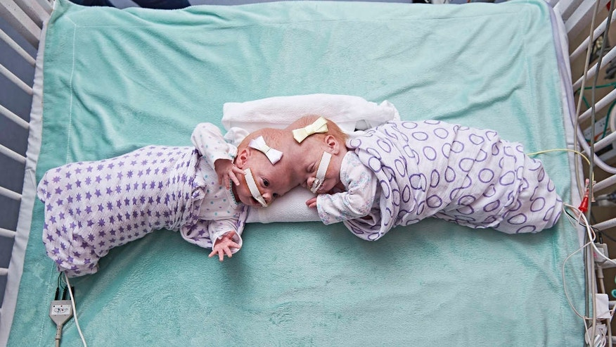 This September 2016 photo provided by the Children's Hospital of Philadelphia shows conjoined twin girls Abby Delaney, right, and Erin at the Children's Hospital of Philadelphia in Philadelphia.