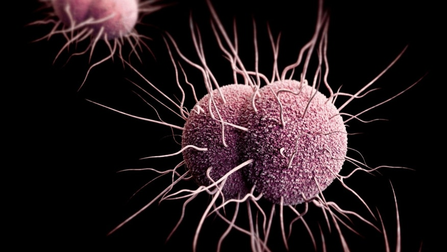 Antibiotic-resistant gonorrhea, shown here, spreads easily and symptoms are often missed. (CDC)