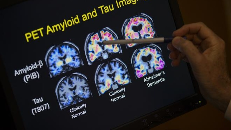 R. Scott Turner, Professor of Neurology and Director of the Memory Disorder Center at Georgetown University Hospital, points to PET scan results that are part of a study on Allheimer's disease at Georgetown University Hospital, on Tuesday, May 19, 2015, in Washington.
