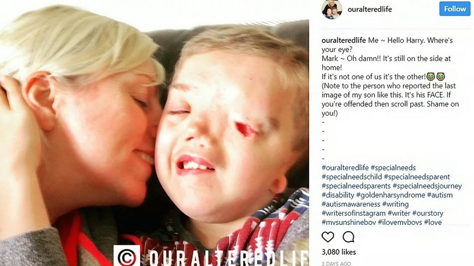 Charlie Beswick, 38, claims Instagram took down the above picture after another user complained. It has since been restored.