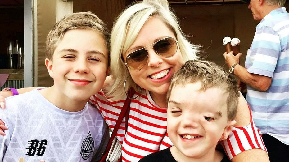 Mom Charlie Beswick, 38, with 12-year-old twins Harry, who has Goldenhar syndrome, and Oliver.