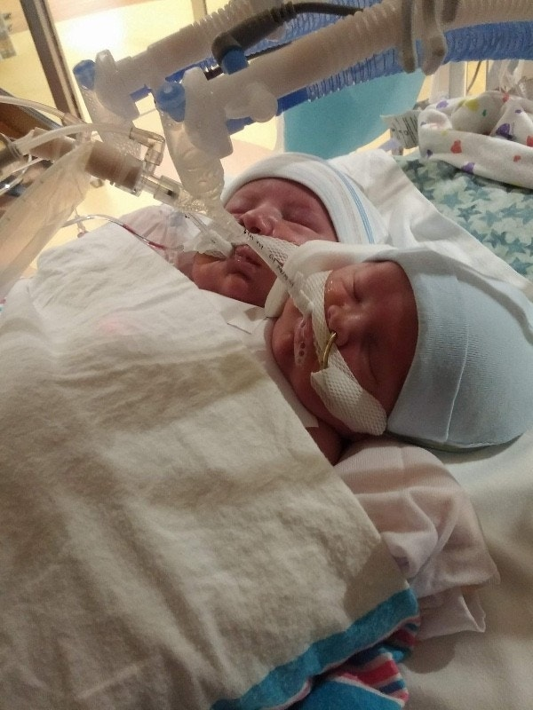 Conjoined twins born at Cincinnati Children's Hospital won't be separated