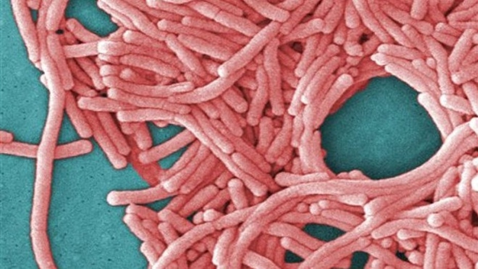 This image made available by the Centers for Disease Control and Prevention (CDC) shows a large grouping of Legionella pneumophila bacteria.