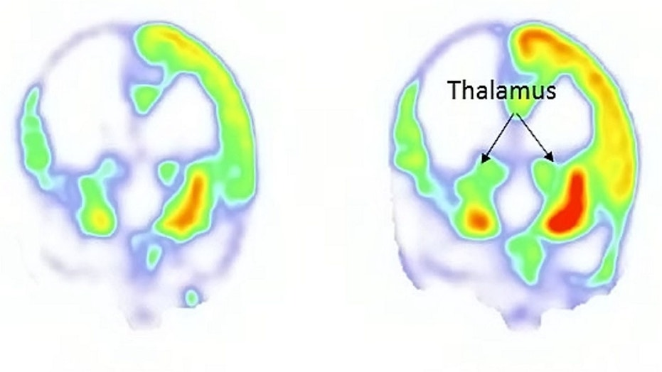Brain images pre-VNS are seen on the left, and post-procedure on the right.