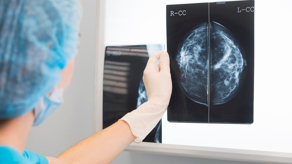 For women with breast cancer, it's important to know which stage of the disease they have.
