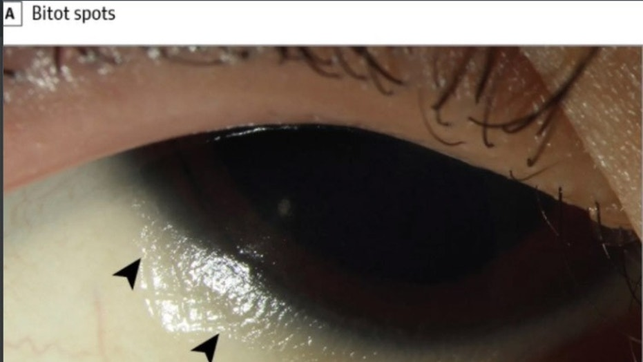 "The black arrows point to ""Bitot spots,"" which are raised, dry patches on the surface of the eye caused by a vitamin A deficiency"