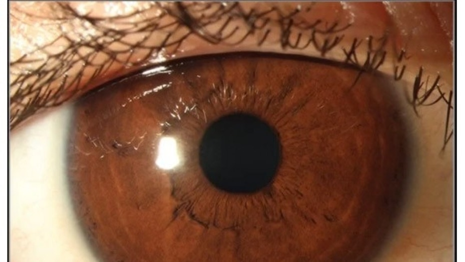 This is a photo of the boy's eye after his treatment for vitamin A deficiency.