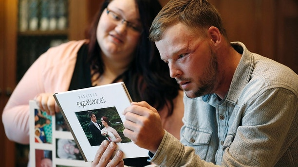 """Lilly Ross, left, shows her family photos to Andy Sandness during their meeting at the Mayo Clinic, Friday, Oct. 27, 2017, in Rochester, Minn. Sixteen months after transplant surgery gave Sandness the face that once belonged to Ross' husband, Calen """"Rudy"""" Ross, he met the woman who had agreed to donate her high school sweetheart's face to a man who lived nearly a decade without one. (AP Photo/Charlie Neibergall)"""