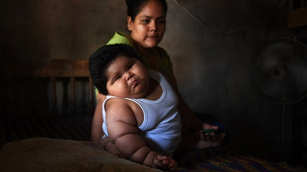 Ten-month-old Luis Gonzales (L) and his mother Isabel Pantoja, 24, are pictured at their home in Tecoman, Colima state, Mexico on November 8, 2017. Luis Manuel Gonzales is almost like any ten-month-old baby; he babbles his first words and wants to touch everything, but he has a dramatic difference that puts his life at stake: he weighs 28 kilos. Luisito does not demand food constantly, as might be suspected; his case is part of the universe of childhood's obesity and diabetes that Mexico leads worldwide. / AFP PHOTO / PEDRO PARDO / TO GO WITH AFP STORY by JENNIFER GONZALEZ COVARRUBIAS        (Photo credit should read PEDRO PARDO/AFP/Getty Images)