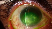 Microsporidial keratitis infected eye. (National Institute of Health)