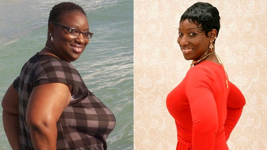 A 50-year old woman told SWNS that when lost 150 pounds, she was able to get rid of a chronic skin problem called Hidradenitis Suppurativa.