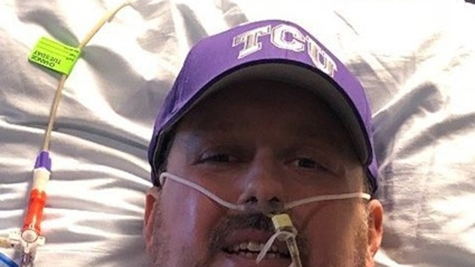 Brian Herndon wound up getting his two feet and nine fingers amputated after suffering severe complications from the flu.