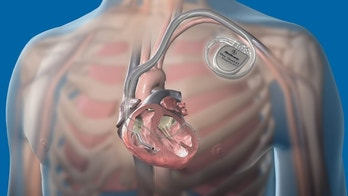 SHEER HEART A HACK - Pacemakers 'could be hacked'