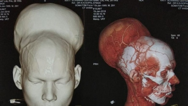 Doctors perform 7-hour-long surgery; successfully remove the largest tumor
