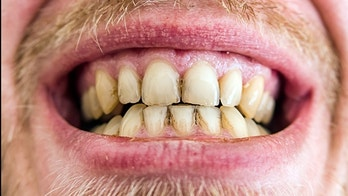 Yellow teeth plaque - close up view