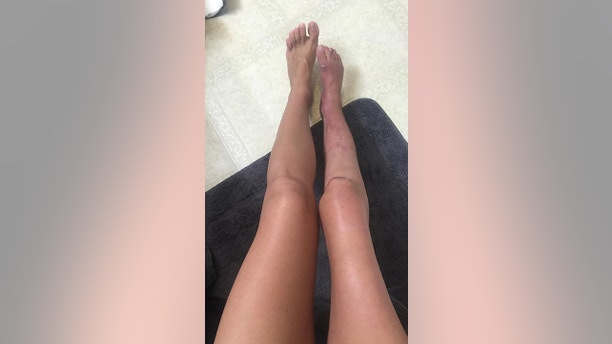 """A photo of Kristy's stunned leg before amputation. See SWNS story NYLEG; A woman who hid her """"ugly"""" leg under trousers for two decades now has the confidence to wear dresses - after making the decision to amputate it. For years Kristy Wimberly, 32, was embarrassed by her right leg which had stopped growing at the same pace as her other when she was diagnosed with a rare spinal cord tumor, astrocytoma, at age six. The nerves connecting her spinal cord to her leg were damaged during surgeries to remove the tumor and further compromised during a surgery to insert titanium rods in her back to treat scoliosis. The damage to Kristy's nerves meant the growth of her right leg was stunted, leaving it a full two inches shorter than the other and unable to walk without a brace. The executive assistant, who has undergone 19 surgeries to try and lengthen her leg, was called a """"cripple"""" by high school classmates and became obsessed with concealing her disability, never wearing shorts or dresses even in the depths of summer. The mom-of-one, from St Louis in Missouri, was confined to a wheelchair and crutches for months after each surgery and was plagued with recurrent infections in wounds caused by the pressure of her brace. Kristy said her whole life was changed when she decided to have her leg amputated in July 2017 in St. Clare Hospital, and now proudly shows off her high-tech prosthetic limb with confidence.  Kristy said: """"I have literally never worn shorts or a dress in 20 years."""