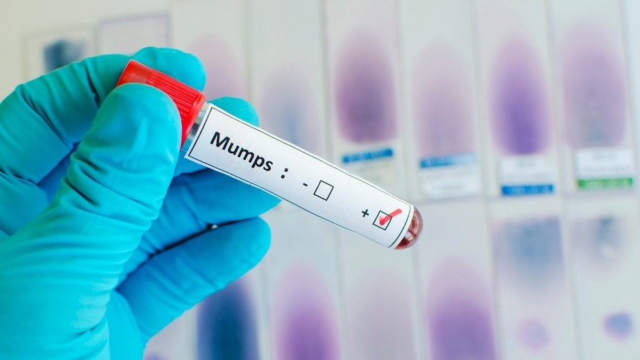 Blood sample with mumps virus positive