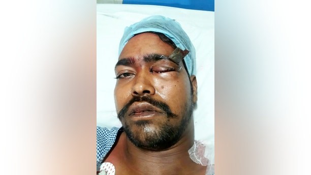A man miraculously survived being knifed in the EYE after the blade missed his brain by millimetres.  See SWNS story SWSTAB.  Ashok Nirmalkar, 25, was stabbed so hard in the eyebrow that the handle snapped off, leaving the three-inch blade embedded in his skull.  And while he is likely to lose the sight in one eye, surgeons were able to remove the blade without causing any damage to his brain.  Ashok, from Pithora area in Raipur, India, was stabbed after getting into a brawl during Holi celebrations on March 2.