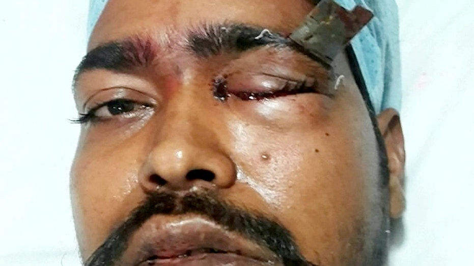 Ashok Nirmalkar was stabbed so hard in the eyebrow that the handle snapped off, leaving a 3-inch blade embedded in his skull.