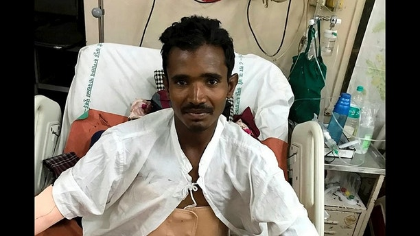 Doctors miraculously saved a builder Salim Sheikh in Nashik in west Indian state of Maharashtra who was impaled on a 4ft pole through his SCROTUM - which emerged near his neck. See SWNS story SWIMPALE;  Salim Sheikh, 33, was working on the first floor of a new building when he slipped and fell on a pile of steel rods. One pierced him through the groin - and then went through the entire length of his body and emerged at his collar bone. Scans revealed the rod had pierced his small intestine, colon, liver, diaphragm and lung - but incredibly surgeons removed the pole during a painstaking five-hour op. Miraculously after just two days in ICU he was discharged to the general ward, where he is expected to make a full recovery.