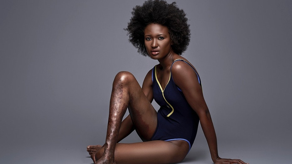 Berlange Presilus has made it her mission to promote diversity and bare her deformed legs in photo shoot.