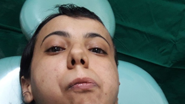 "A woman has eaten solid food for the first time in her life - 30 years after her jaw was fused shut by a tumour. See story SWJAW, Fatima, 30, from Yemen, couldn't open her mouth and had to exist on a liquid diet, before she visited Indian doctors looking for a cure.Surgeons found a benign tumour on her jaw joint which they removed in a four-hour operation.The grateful woman said she couldn't wait to ""scream my lungs out"" and has already tucked into solid food for the first time in her life.She said: ""For most people, opening their mouth, chatting and relishing on sumptuous food is a normal way of life. ""In the past three decades, this is the first time I open to my mouth, eat food and enjoy its taste, and talk to my friends and family. ""The opening of the mouth has opened the entire world for me'."