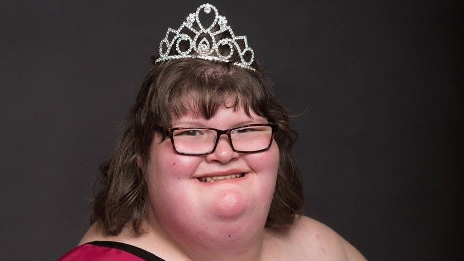 A 15-year-old girl who weighs 380 lbs due to a rare condition called Prader-Willi Syndrome has been crowned a pageant queen.