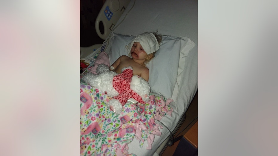3-year-old Lydia Cravens was hospitalized for severe hives and blisters after using a children's toy makeup kit.