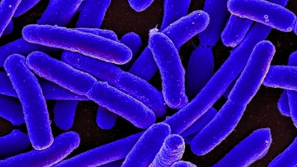 Dept. of Health investigates 6 possible cases of E. coli