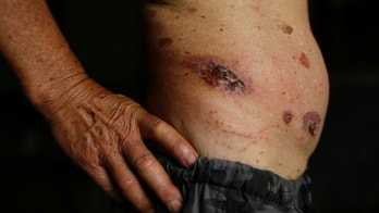 Skin ulcers are seen on 69-year-old Gong Zhaoyuan's torso in Heshan village, in Shimen county, central China's Hunan Province, June 3, 2014. Zhaoyuan suffers from skin cancer, which developed as result of arsenic poisoning.  From the 1950s, mines and chemical plants mushroomed in the area around Heshan which is rich in realgar, or arsenic disulphide. They were shut down in 2011 due to the pollution they caused but dust and runoff from arsenic plagues Heshan to this day. In 2010, 157 villagers from Heshan, with a population of about 1,500, had died of cancer caused by arsenic poisoning in the previous two decades, and another 190 had developed cancer due to arsenic poisoning, the villagers wrote in a letter to the local government, seen by Reuters, seeking compensation and aid. Picture taken June 3, 2014. REUTERS/Jason Lee (CHINA - Tags: BUSINESS HEALTH SOCIETY)  ATTENTION EDITORS - PICTURE 06 OF 27 FOR PACKAGE 'HESHAN - A POISONOUS LEGACY' TO FIND ALL IMAGES SEARCH 'HESHAN' - GM1EA6N0JMP01