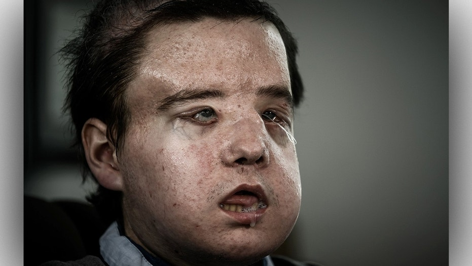 Jerome Hamon, 43, received his second face transplant from a 22-year-old donor after waiting for two months without a face.