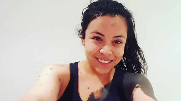 Lorena Bolanos, a body positive activist born with dark birthmarks that cover half of her body said she was once told to take her own life by a cruel school bully because of her appearance. See SWNS story NYMOLES; Lorena Bolanos, 24, was born with more than a dozen large raised birthmarks, also known as congenital melanocytic nevi, including one that sprawls across the right side of her torso. Although the birthmarks do not impact her health, Lorena said her teenage years were very difficult as high school bullies labeled her 'Dalmatian' and called her 'Chocolate Chip Cookie' in the hallways.The imports/exports manager said she once received a message on social media from a classmate that suggested she take her own life. When she was in middle school, Lorena was even asked to leave an ice-rink because a customer suspected she had measles. Lorena, from Queretaro, Mexico, said she fell into a deep depression during her first year in the university after years of battling against negative comments about her appearance. For most of her life, Lorena said she was ashamed to expose her birthmarks in public and dressed in long-sleeved t-shirts and scarves despite the hot climate.