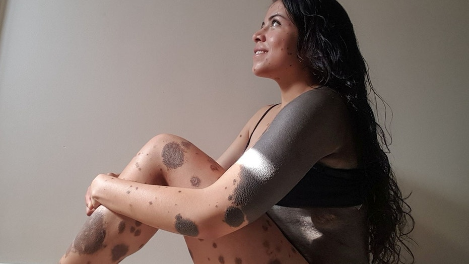 Lorena Bolanos, a body positive activist born with dark birthmarks that cover half of her body, said she was bullied by her classmates at school.