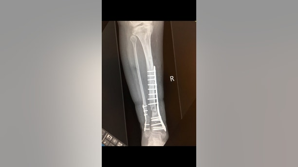 """X-Ray showing Victoria Snell leg. See SWNS story SWLEG; A young woman had to have her leg amputated after a simple break that wouldn't heal. Victoria Snell, 26, suffered a stress fracture while walking down the street, and was in and out of hospital for the next six years. She underwent a total of four operations, having several bone grafts and metal plates installed, but nothing seemed to work. Facing a fifth operation to have a cage fitted around her leg Victoria, from Manchester, decided enough was enough - and told the docs to lop her leg off. the leg wouldn't heal. Victoria added: """"I kind of got used to going use to going there all the time. """"By the time we got to the third surgery I knew what to expect, I knew I had to take time off work, I knew what was happening. """"I accepted it was something I was going to have to go through for a couple of years."""" In October 2016, she was given another bone graft and had more metal plates installed - but they eventually gave way on April Fools' Day, 2017. Then, on June 22, Victoria was back on the slab as doctors righted the last surgery, but again the leg refused to heal."""