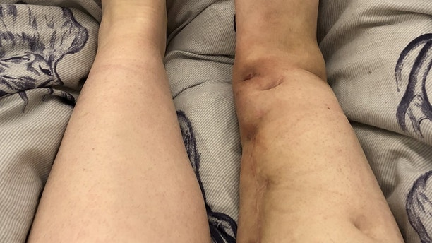 Victoria Snell leg showing the many scars after 4 ops. See SWNS story SWLEG; A young woman had to have her leg amputated after a simple break that wouldn't heal. Victoria Snell, 26, suffered a stress fracture while walking down the street, and was in and out of hospital for the next six years. She underwent a total of four operations, having several bone grafts and metal plates installed, but nothing seemed to work. Facing a fifth operation to have a cage fitted around her leg Victoria, from Manchester, decided enough was enough - and told the docs to lop her leg off.