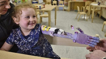 Lily-Mai White, with mum Hannah White, is fiited with a newprosthetic arm fitted by  Mark Bryant at Middleton pre-school at Bretton, Peterborough. See Masons copy MNARM: A four-year-old girl who was born without a forearm has been transformed in a Disney princess  - thanks to a prosthetic arm which features a Frozen-themed design. Experts have printed Lily-Mai Drummond a 3D replica arm with a snowflake design like the one featured on Queen Elsa's dress in the hit movie. Lily-Mai was born without the limb due to complications in the womb. But after having the £1,000 purple glittering prosthetic hand fitted this week, the youngster will now be able to get herself ready for her first day at school in September.