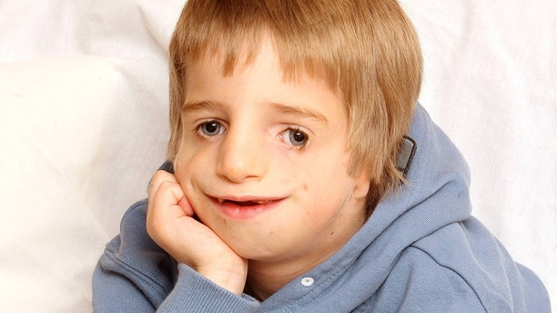 "Anti bullying campaigner Ashley Collins who has Treacher Collins syndrome - he is pictured here aged 6. See SWNS story SWBULLY; A teenage anti-bullying campaigner with a rare genetic disorder which causes facial deformity was ""insulted"" after being contacted by Channel 4 show - The Undateables. Brave Ashley Carter, 17, was born with Treacher Collins syndrome and was bullied as a child before becoming an anti-bullying campaigner. He has appeared on shows such as Loose Women, The Jeremy Kyle Show and ITV News West Country to share his story. But he was horrified to receive an email from Channel 4 researcher for The Undateables, described as a ""documentary series following people with challenging conditions who are looking for love."""