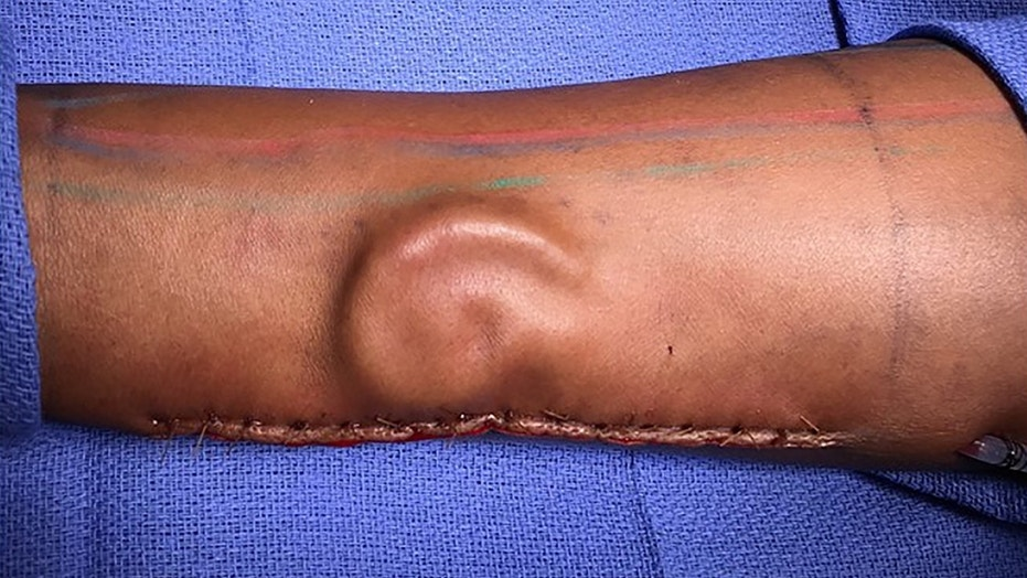 Surgeons grow soldier's new ear in her FOREARM