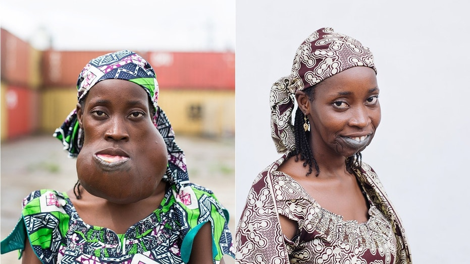 After eight years of suffering, surgeons removed a huge mass from inside Yaya's mouth that was threatening her ability to breathe.