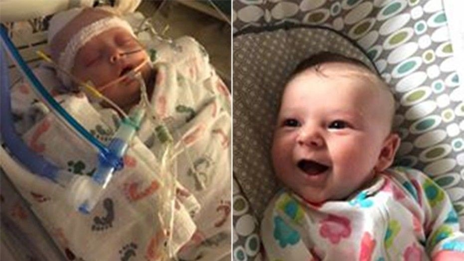 Doctors have told the family of 7-week-old McKenna Hovenga that the infant's brain activity is calming down -- about a week after she was hit in the head with a softball and suffered a traumatic brain injury.