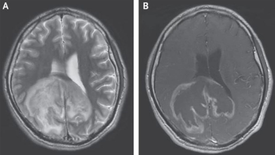 A large mass in a man's brain was due to an infection with the parasite Trypanosoma cruzi.