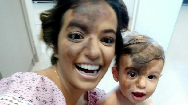 Carolina Giraldelli with her son Enzo Cestari who was born with a large birthmark on his face. Carolina has had an identical mark painted on her face in solidarity with her child. See SWNS story SWMARK; A mum paid tribute to her adorable son by having a perfect replica of his birthmark painted on her face so she could walk in his shoes for a day. Little Enzo Cestari, one, was born with a dark birthmark covering most of his forehead and stretching down one side of his nose. His mum Carolina Giraldelli, 26, from Cáceres, Brazil vowed to never hide his unique mark and to make sure he knew he was perfect just the way he was. The businesswoman ask a professional make up artist to perfectly replicate her son's birthmark on her own face to celebrate his uniqueness.