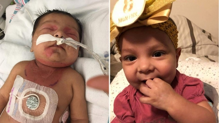 Annaleise was born with red bumps on her body that were eventually diagnosed as leukemia. The nearly 9-month-old is now considered cancer-free.