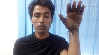 """PLEASE NOTE GRAPHIC CONTENTIbrahim Khan whose hand was saved by surgeons after it was mangled in a cement crusher. See SWNS story SWHAND; It was a normal working day for 36-year-old Ibrahim Khan – a labourer at a ready-mix concrete plant near the small town of Lonand in Maharashtra, India. But, all of a sudden something went horribly wrong, and Khan's left hand got stuck in the cement crusher machine and was completely crushed and mangled beyond recognition. The incident took place in the last week of March this year. His co-workers rushed him to a nearby hospital where the doctors said that nothing can be done to save his hand, but advised that he be taken to a better-equipped hospital. Khan was then rushed on the same day to Noble Hospital in Hadapsar, a suburb of Pune city, 72 km north of Lonand. """"The hand was completely severed and was just hanging on one tendon. All the muscles of the hand where avulsed from the proximal origin. It was near to impossible to reconstruct the hand or replant it. We took it as a challenge, and did a reconstructive surgery, racing against time, and succeeded in saving his hand,"""" said Microvascular and Reconstructive Surgeon Dr. Abhishek Ghosh of Noble Hospital, Pune, who led the team of surgeons who successfully reconstructed Khan's hand. """"The patient was taken to the operation theatre and the artery, veins, nerves, and tendons were painstakingly reconstructed,"""" said Dr. Ghosh."""