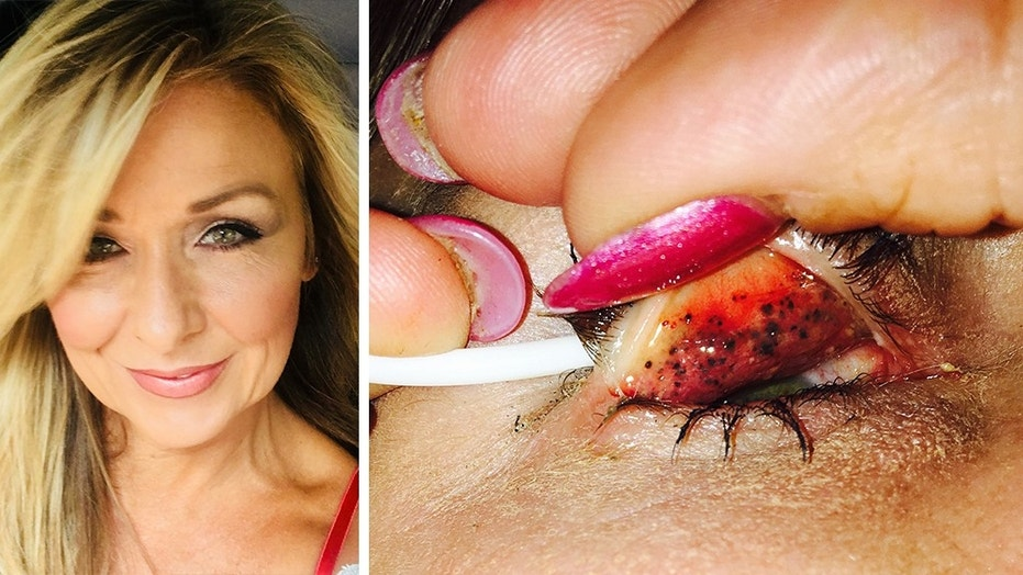 "Theresa Lynch, 50, left her mascara on for 25 years and a doctor discovered something shocking underneath her eyelids. Now, Lynch is warning others to ""properly take your makeup off every single night."""