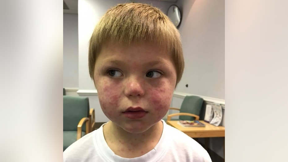 Mason McNair, 5, broke out in a rash due to the tick bite.