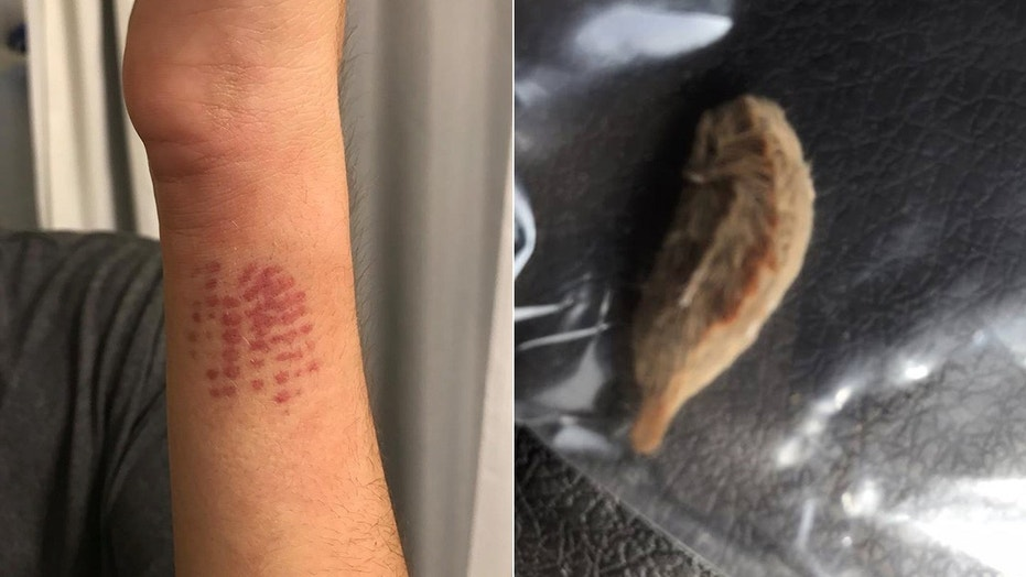 Andrea Pergola shared a photo of her son's injury, left, and the caterpillar he brushed up against on Facebook with a warning.