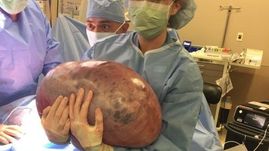 50-pound ovarian cyst removed from Alabama woman