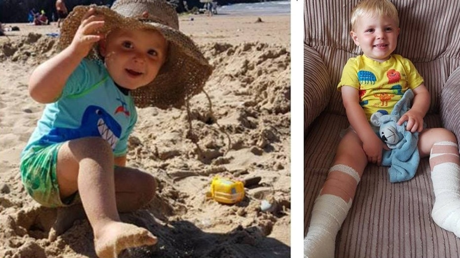 Laura Ashford said her two-year-old son, Harri, suffered severe burns after he touched the remnants of a beachfire that was buried underneath sand at a Welsh beach.